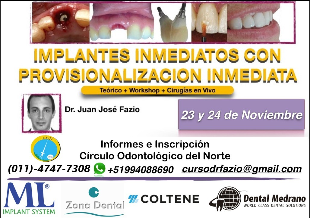Implantes inmediatos